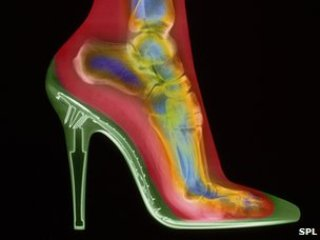 High Heel Health Hazard