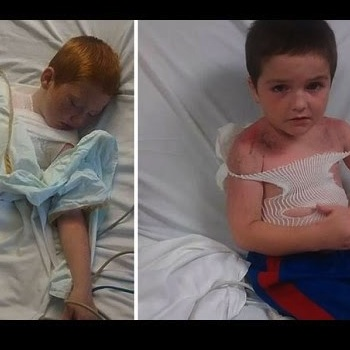Mom Shocked and Furious After Sons Suffer Serious Sun Burn At Day Care