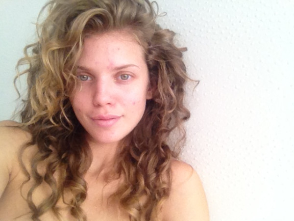 Going Makeup-Free: Celebs Bare Blemishes and All