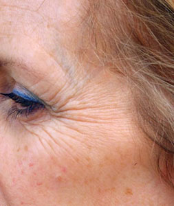 FDA Says Okay To Botox For Crow's Feet