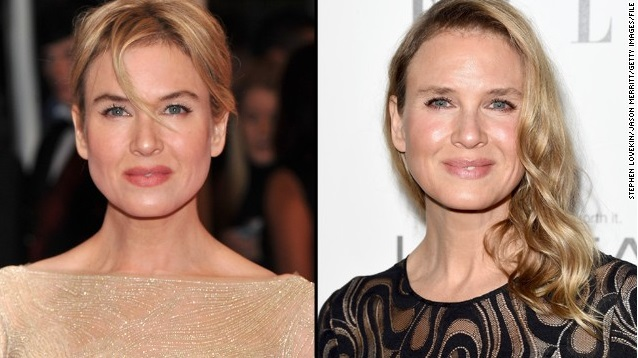 Renee Zellweger Responds To All the Chatter About Her New Look