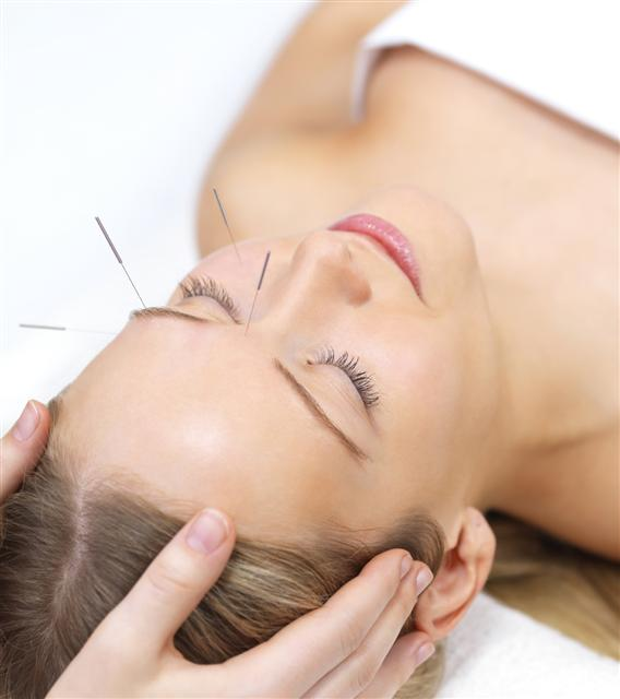 Visit an acupuncture specialist and rock a healthier-feeling you