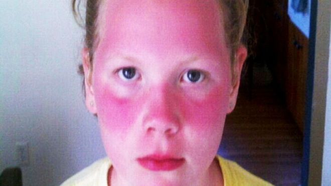School to Blame for Students Suffering Severe Sunburns?